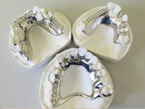 Chrome Dentures